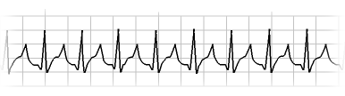 6 Second ECG - SVT