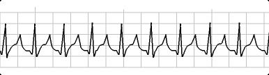 6 Second ECG - SVT